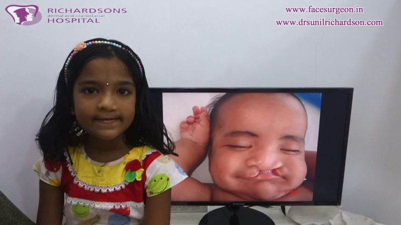 Cleft Lip Sample Result   Over 10000 cases successfully done at Richardsons Face Hospitals, India