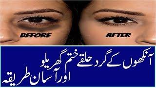Aankhon Ke Gird Siyah Halke Door Karne Ke Gharelu Triqa Dark circles under eyes