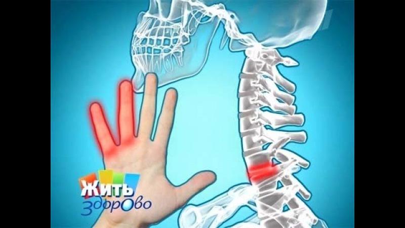 Елена Малышева Причины онемения пальцев рук