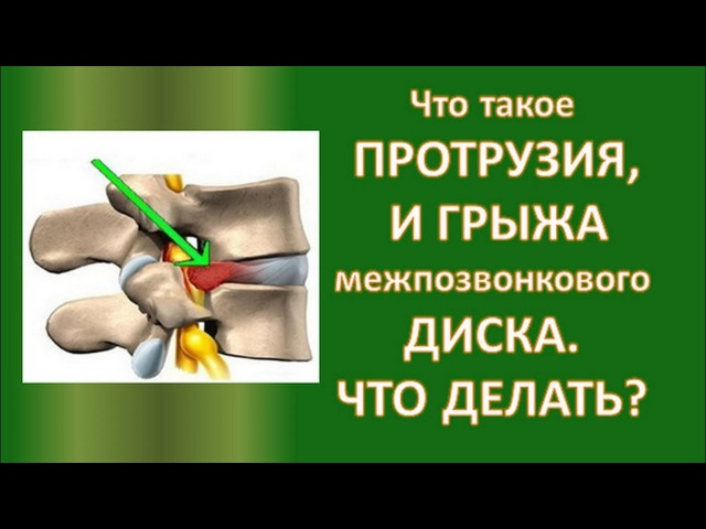 Чем отличаются Протрузия и Грыжа Межпозвоночного Диска доктор Людмила Миронюк