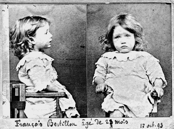 Полицейский снимок двухлетнего Франсуа Бертильона, самого юного злоумышленника, который был задержан по обвинению в чревоугодии, а именно за то, что надкусил все груши из корзины
