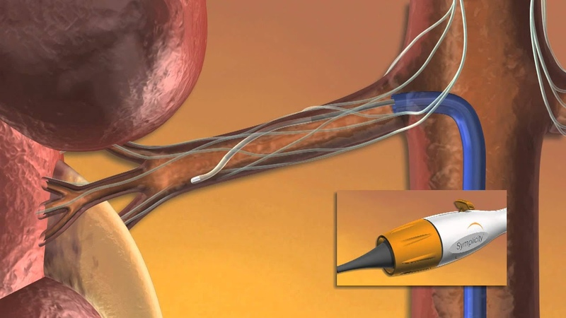 Ardians Catheter-Based Treatment for Hypertension