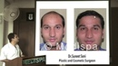 How to choose a Hair Transplant Surgeon, FUT or FUE, Cost, Medispa By Dr Suneet Soni Jaipur Delhi