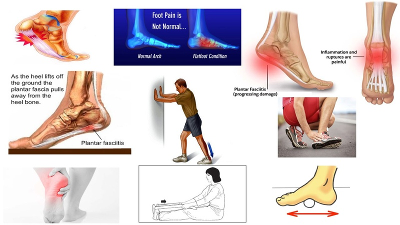 Correct Plantar Fasciitis Quickly! Medically Proven The Best Exercises Stretches Dr Mandell