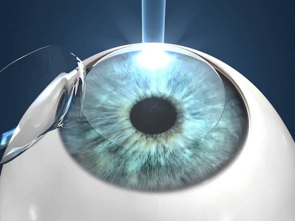 Лазерная коррекция зрения навсегда избавит от очков