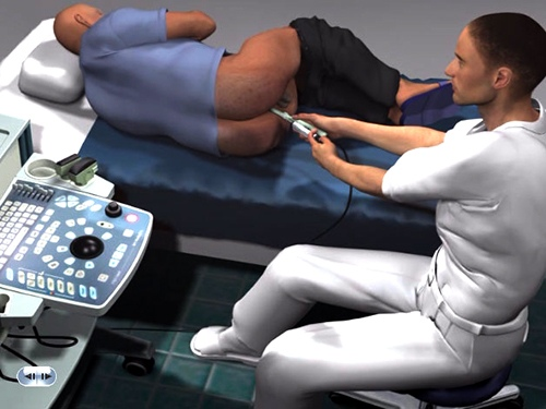 Аноскопия - это исследование с использованием небольшого жесткого трубчатого инструмента, называемого аноскопом.