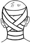 Циркулярная повязка на шею, укрепленная крестообразными ходами на голове