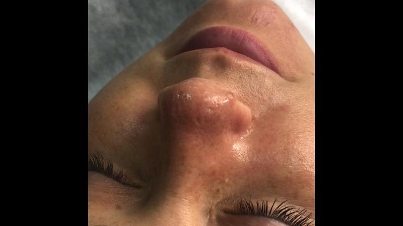 Результат после чистки лица