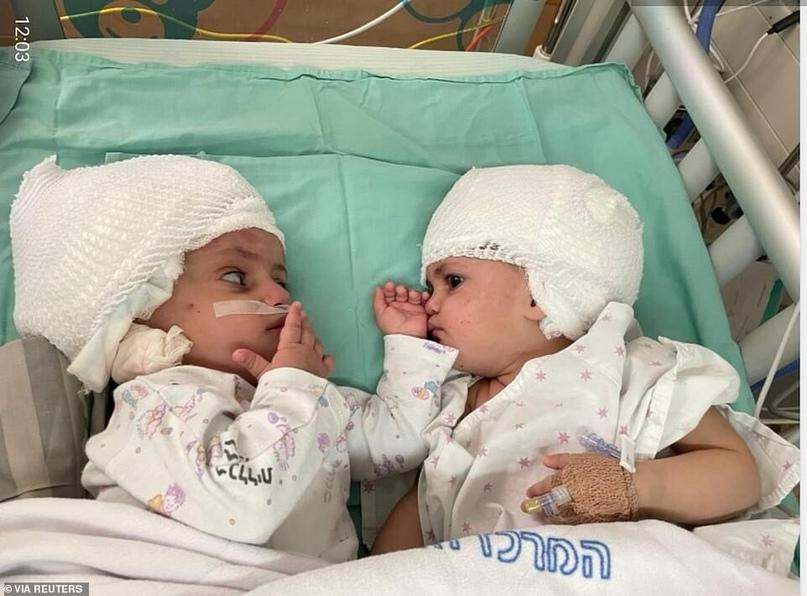 В Израиле провели уникальную операцию по разделению сиамских близнецов