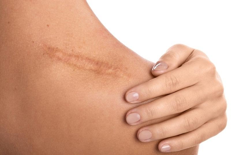 Найден препарат, позволяющий ранам заживляться без шрамов
