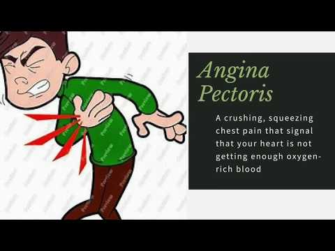 HOW TO TREAT AND PREVENT ANGINA PECTORIS I 2,000 HOME REMEDIES