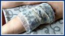 ЗАБЫТЫЙ рецепт от ОТЕКОВ и варикоза на ногах. Лечим варикозное расширение вен.
