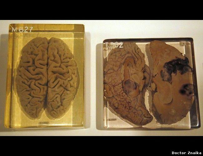 Гениальный учёный Альберт Эйнштейн умер в 1955 году в Принстонской больнице (Принстон, США).