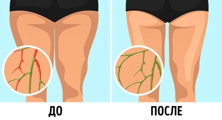 6 Простых лимфодренажных упражнений, с которыми вес уходит без диет! В ГИФКАХ!, изображение №1